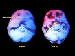 normal - violent brain