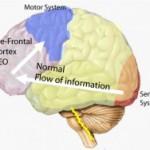 brain-no-stress1-227x188